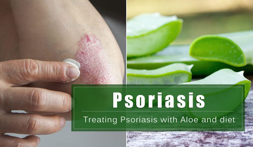 Treating Psoriasis with Aloe and diet