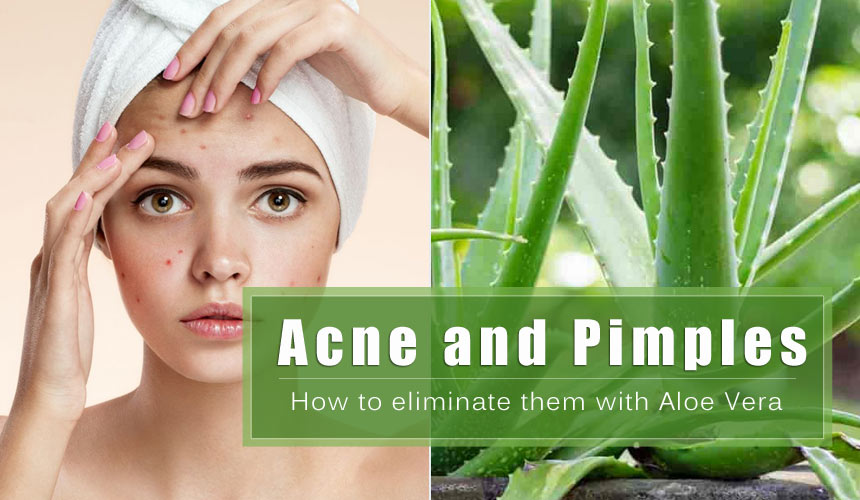How to get rid of acne and pimples with Aloe Vera